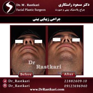 نمونه جراحی بینی توسط دکتر راستکاری