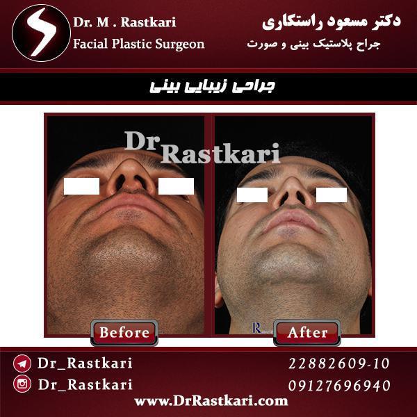 نمونه کار جراحی انحراف بینی مردانه