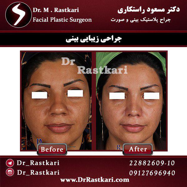 نمونه کار جراحی بینی دکتر راستکاری