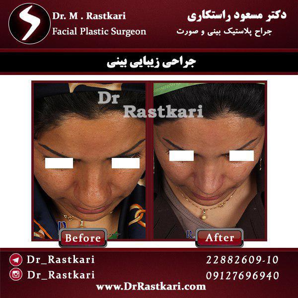 قبل و بعد از جراحی انحراف بینی