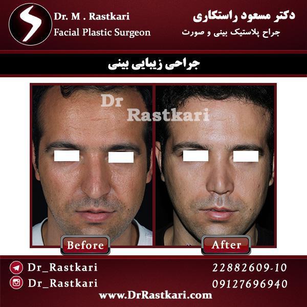 نمونه جراحی بینی مردانه