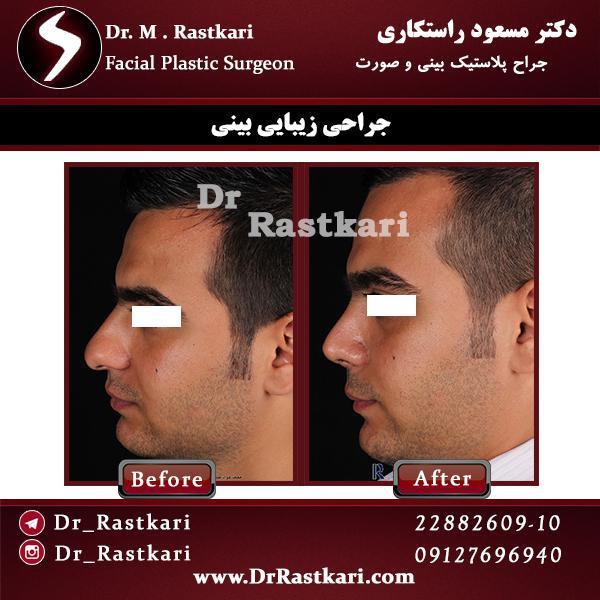 جراحی زیبایی بینی مردانه