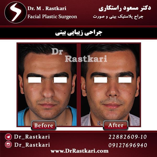 جراحی بینی 5