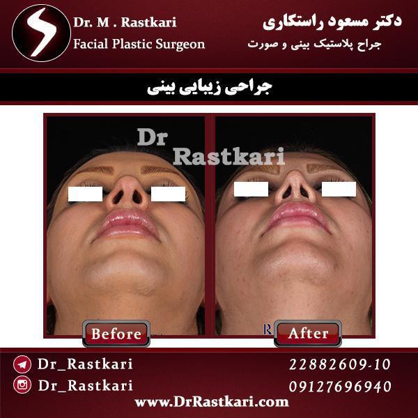 نمونه ای از جراحی بینی