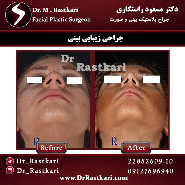 نمونه جراحی بینی 3
