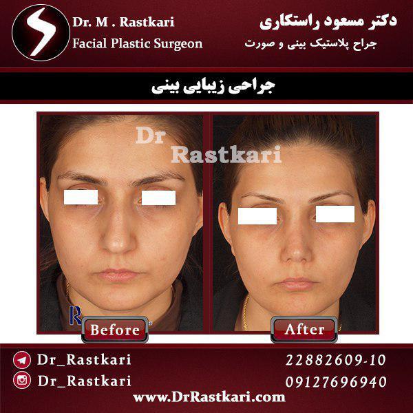 نمونه واقعی جراحی بینی گوشتی