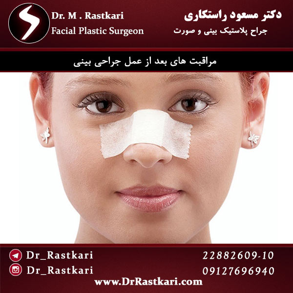 مراقبت های لازم پس از جراحی بینی