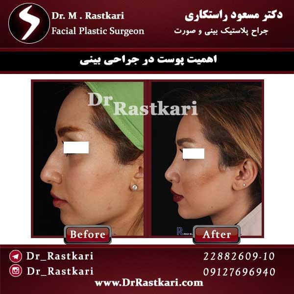 اهمیت پوست بینی در جراحی زیبایی