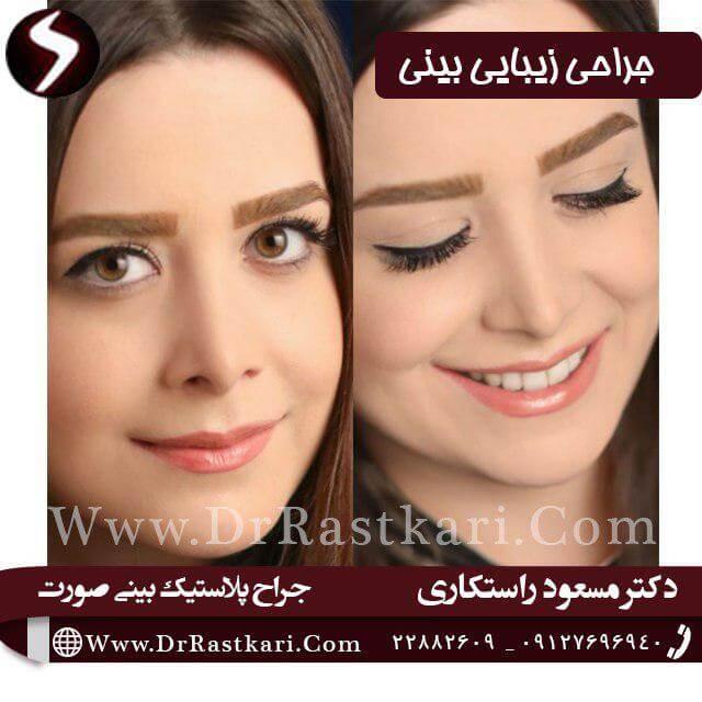 نمونه ای از جراحی بینی استخوانی