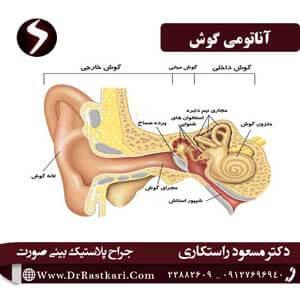 جراحی گوش (اتوپلاستی)