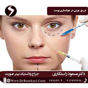 تزریق چربی در جوانسازی پوست