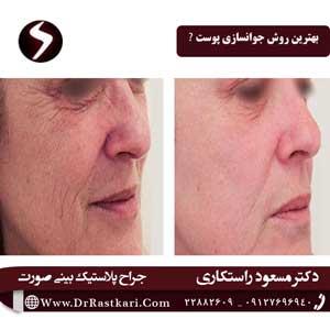 انتخاب بهترین روش جوانسازی پوست
