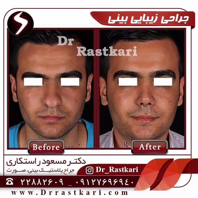 قبل و بعد جراحی بینی آقایی جوان