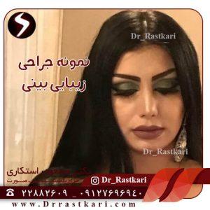 نتیجه جراحی زیبایی بینی