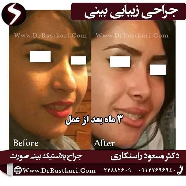 قبل از عمل بینی و 3 ماه بعد