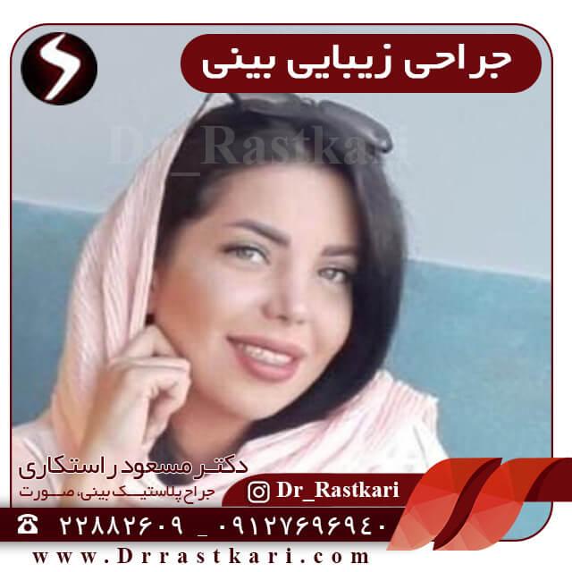 جراحی زیبایی بینی در خانم ها