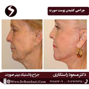 جراحی کشیدن پوست صورت