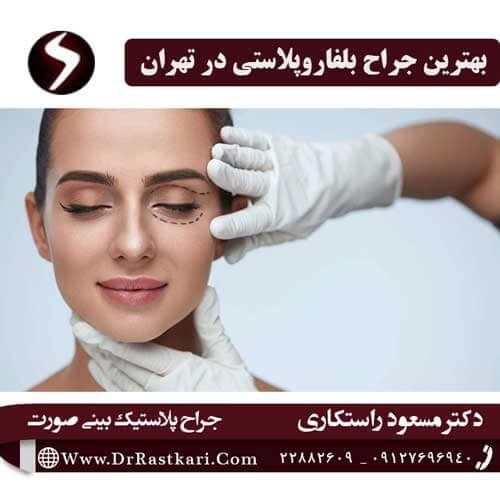 بهترین جراح بلفاروپلاستی در تهران