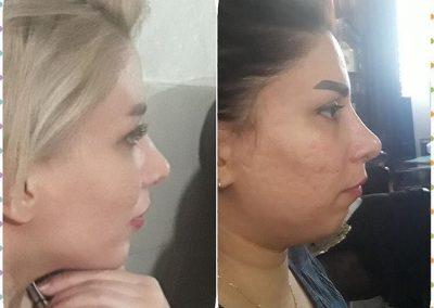 نمونه عمل بینی پس از جراحی