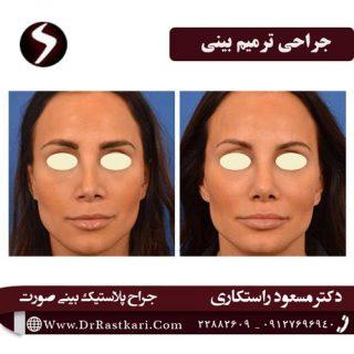 چگونه جراح ترمیم بینی خود را انتخاب کنیم؟